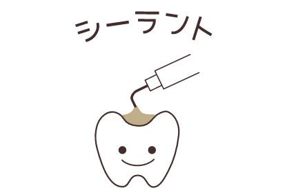 シーラント(歯の形態的予防処置)
